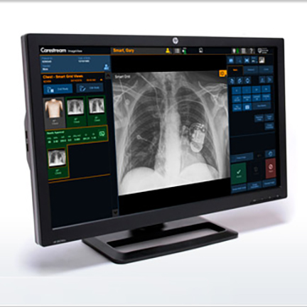 Carestream Imageview Software